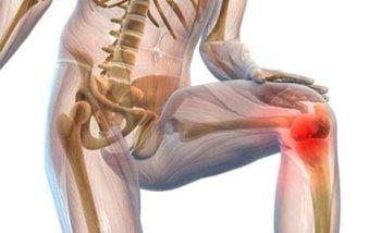 Суставы арго как обезболить коленный сустав в домашних условиях