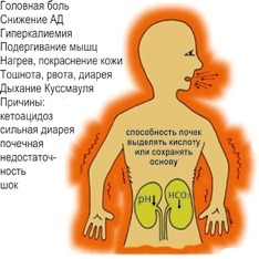 Ацидоз (метаболический)