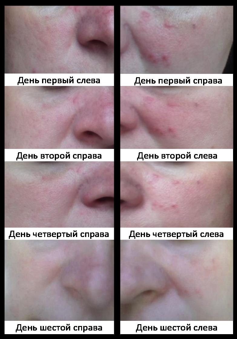 Пробиогум для кожи или избавление от воспалительных процессов на лице за шесть дней