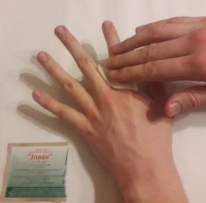 Асептическая и гигиеническая обработка кожи