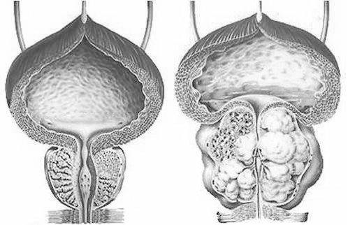 Нормальная простата и доброкачественная гиперплазия предстательной железы