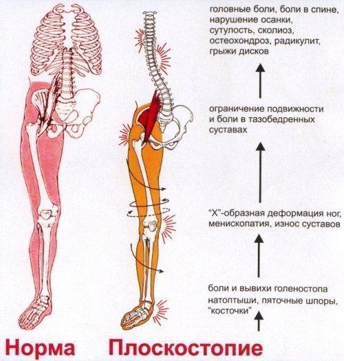 Кальцификаты предстательной железы